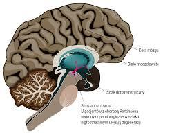 Was ist Parkinson-Krankheit Gesundheit?