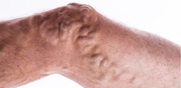 Veincine Forte – Bewertung – in apotheke – preis