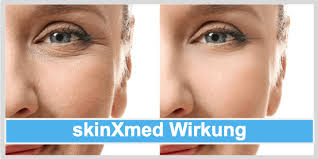 Skinxmed - Antifaltencreme - preis - bestellen - test