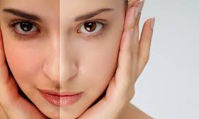 Loriax Anti-Aging – bestellen – Bewertung – in apotheke