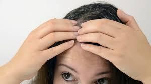 Rezilin – für das Haarwachstum - Nebenwirkungen – Bewertung – comment