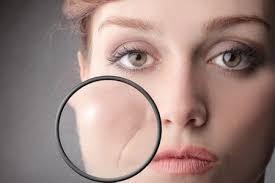 Skin!O - für bessere Haut - Nebenwirkungen - erfahrungen