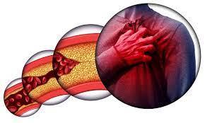 Cardione - in Hersteller-Website - kaufen - in apotheke - bei dm - in deutschland